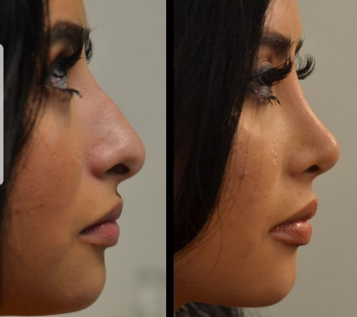 جراحی بینی در مشهد