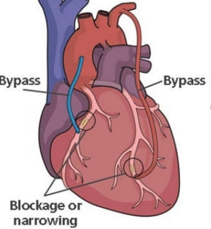 بهترین دکتر جراح قلب مشهد