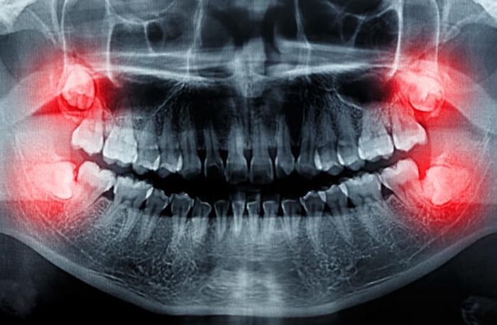 جراحی دندان در مشهد