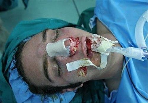 سخت ترین عمل جراحی زیبایی