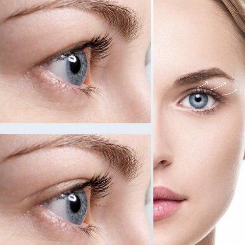انواع جراحی زیبایی پلک