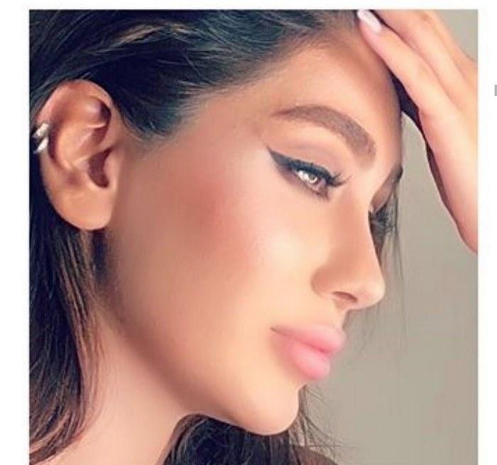 جراحی زیبایی بینی در مشهد