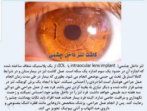جراحی چشم لازک