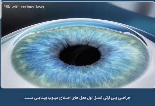 جراحی چشم لیزیک