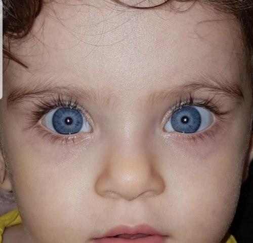 جراحی چشم آستیگمات