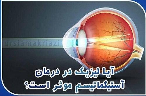 جراحی چشم بیرون زده