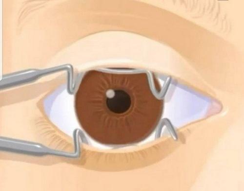 جراحی چشم بادامی