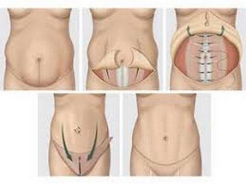 عوارض جراحی شکم و پهلو