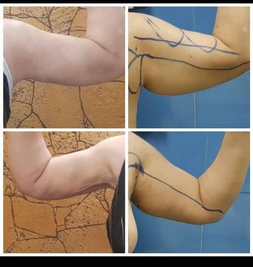 جراحی های زیبایی بدن