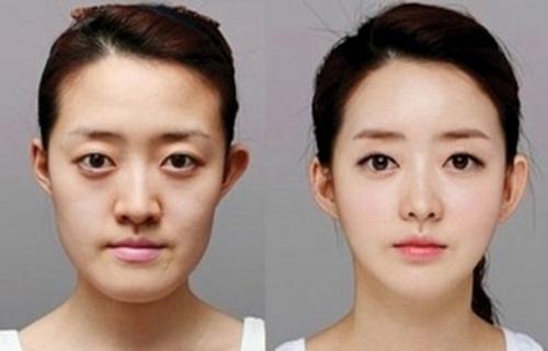 جراحی زیبایی فک قیمت