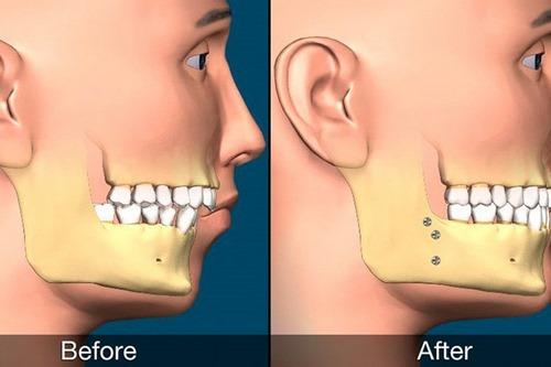 جراحی زیبایی فک چگونه است ؟