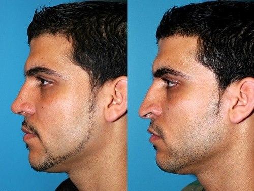 جراحی بینی طبیعی مردانه