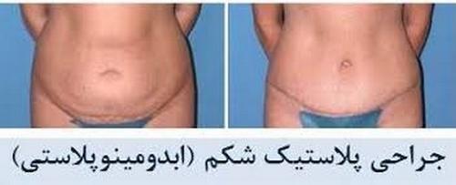 عوارض جراحی پلاستیک شکم