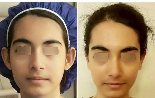 جراحی زیبایی گوش در مشهد