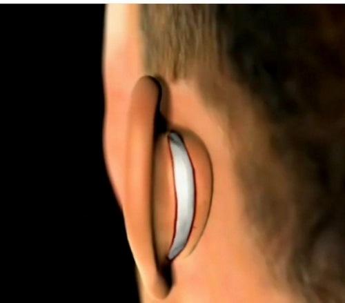جراحی زیبایی گوش و حلق