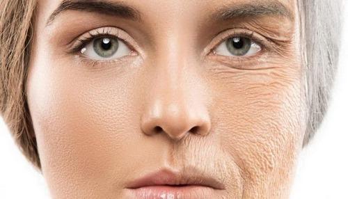 جراحی پلاستیک چین و چروک صورت