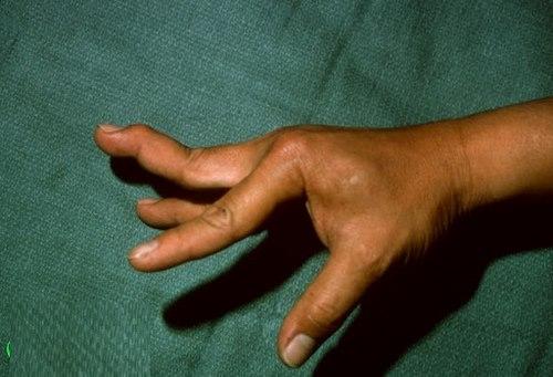 عمل جراحی پلاستیک دست