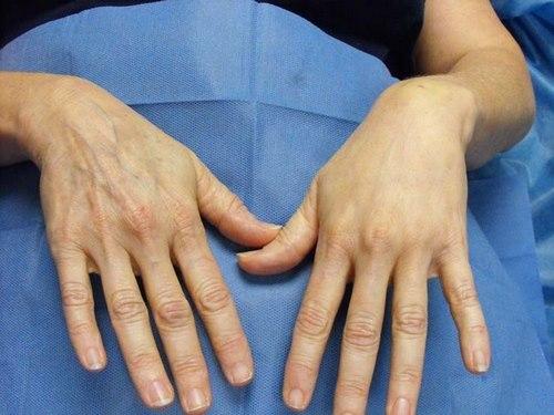 فوق تخصص جراحی پلاستیک دست