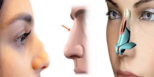 عمل جراحی بینی با لیزر