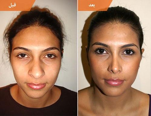 دکتر جراحی زیبایی بینی در مشهد