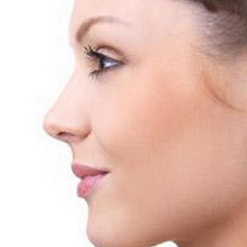 جراحی بینی با لیزر چگونه است ؟