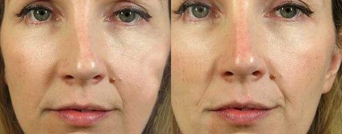 جراحی بینی بدون بیهوشی با روش جدید لیزر