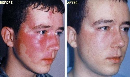 جراحی پلاستیک سوختگی صورت