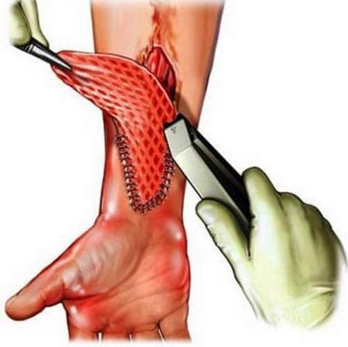 جراحی پلاستیک سوختگی دست