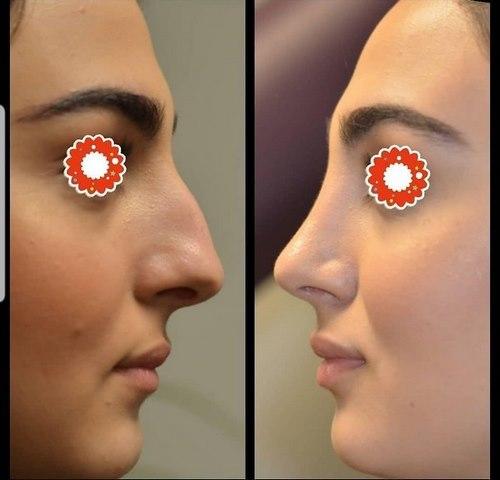بهترین دکتر جراحی بینی در مشهد