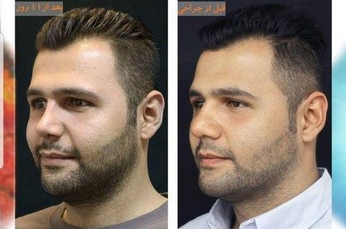 بهترین جراحی بینی در مشهد