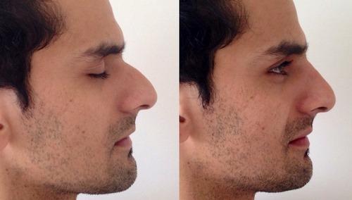 هزینه جراحی بینی به روش بسته