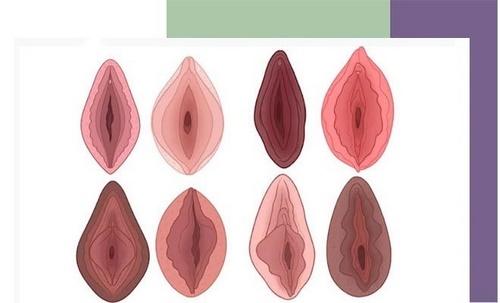 دوره نقاهت جراحی زیبایی واژن