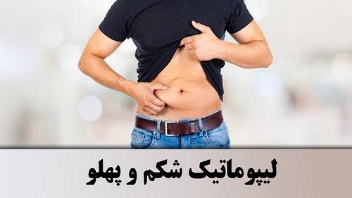 مراقبت های بعد از عمل لیپوماتیک شکم و پهلو