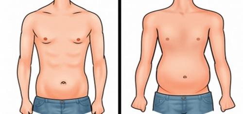 مراقبت های بعد از عمل جراحی شکم