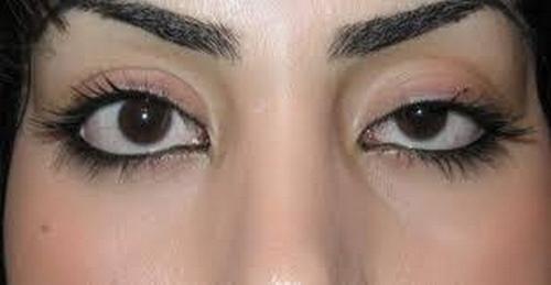 جراحی چشم گربه ای در ایران