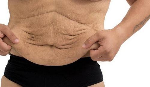 عوارض بعد از جراحی شکم