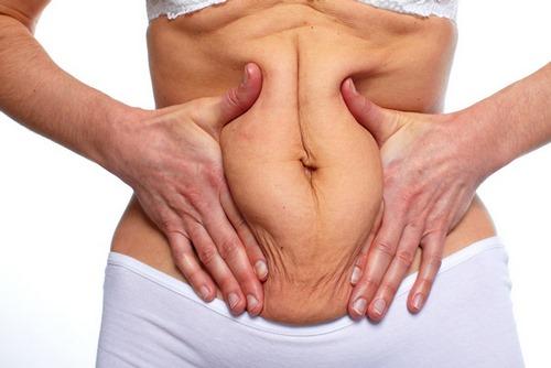 عوارض بعد از عمل جراحی شکم