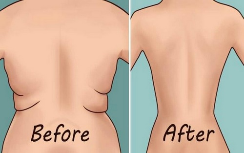 عوارض جراحی شکم ابدومینوپلاستی
