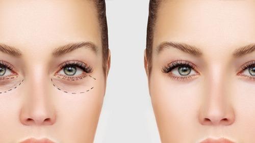 دکتر جراحی زیبایی چشم در مشهد