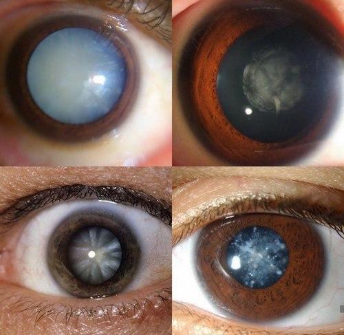 دکتر جراح زیبایی چشم در مشهد