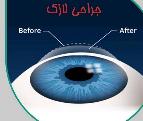 دکتر جراحی چشم مشهد