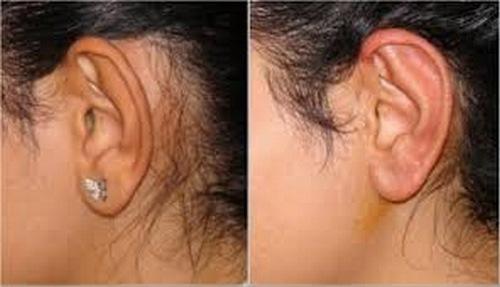 عوارض جراحی پلاستیک گوش