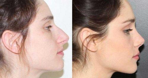 عمل جراحی صورت زیبایی