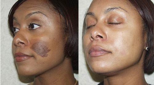 جراحی سوختگی صورت