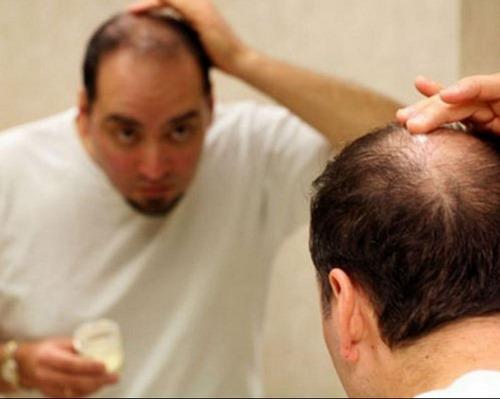 طب سنتی برای ریزش موی مردانه