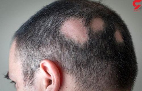 طب سنتی برای ریزش موی سکه ای