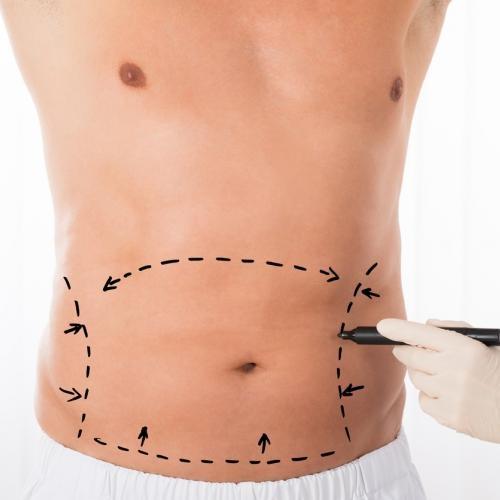 جراحی شکم و پهلو لیپوماتیک در مشهد