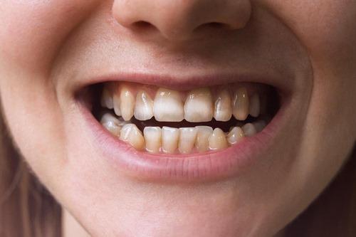 بیمه دندانپزشکی سینا