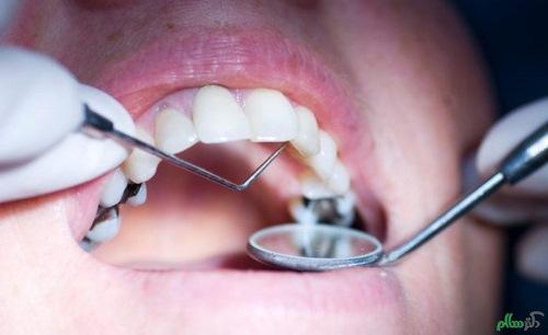 بیمه دندانپزشکی در مشهد