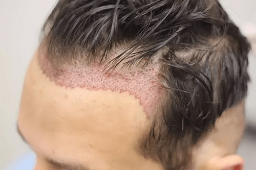 سردرد بعد از کاشت مو